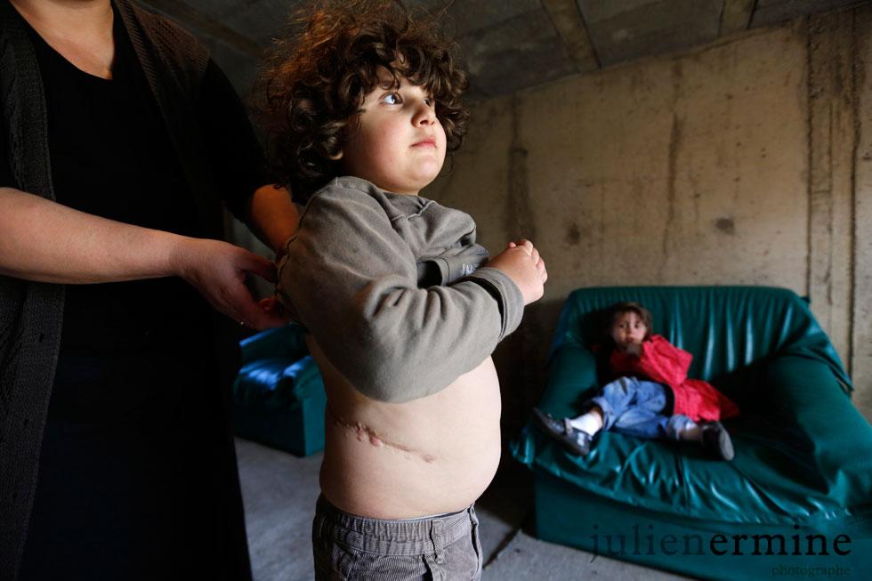 La famille de cet enfant, a tout quitté en Géorgie, vendu ses deux maisons, pour tenter de sauver leur fils souffrant de dysfonctionnement des reins en le faisant soigner en France.