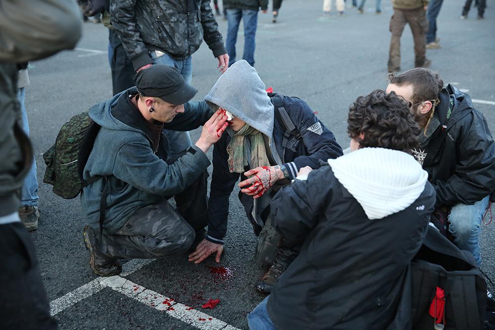 chaque fois qu'il y a des combats, il y a du sang versé, des blessés. Cet homme s'est pris un coup de matraque au coin de l'oeil et du nez.